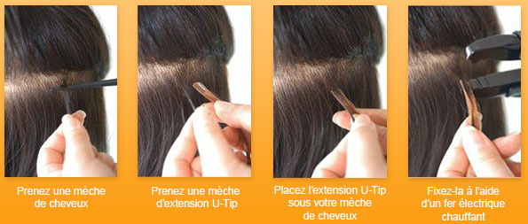 POSE DE L'EXTENSION U-TIP